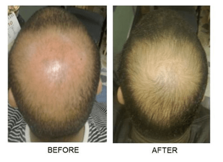 Niagara Falls Hair Restoration
